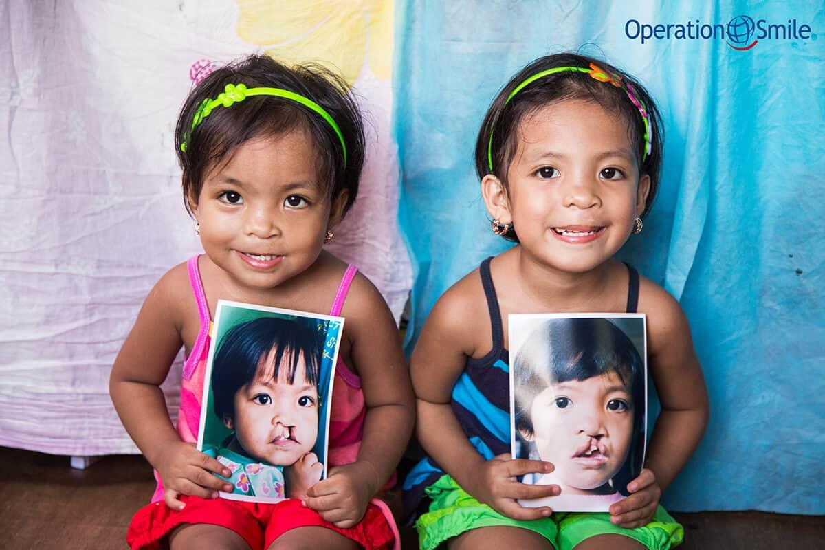 Vi stödjer Operation Smile